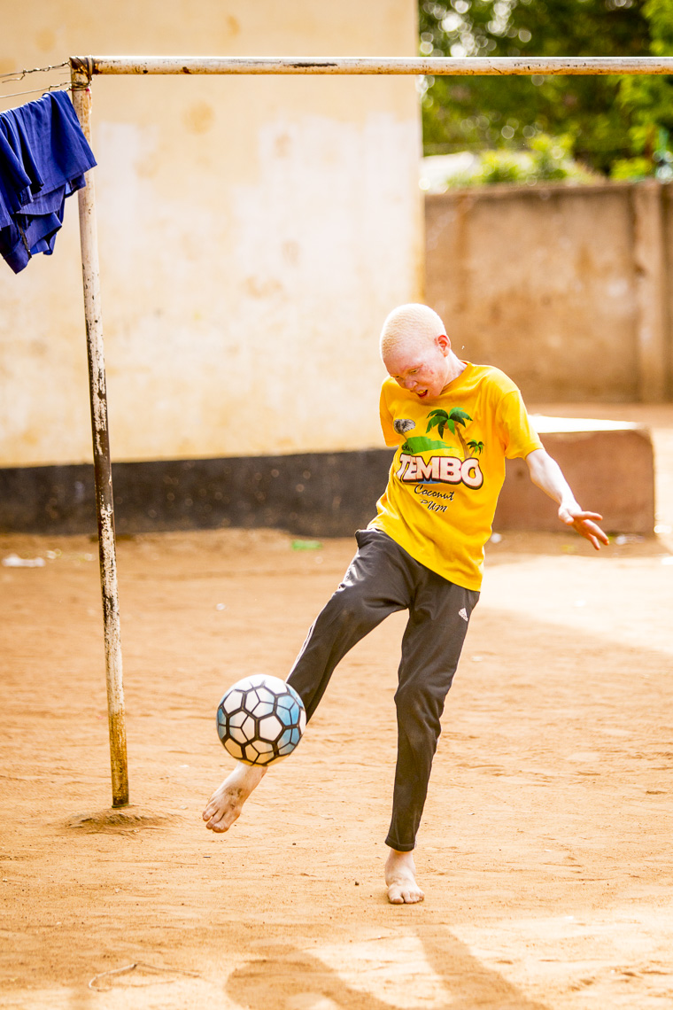 A young boy with Albinism kicks a ball in a dirt courtyard in East Africa