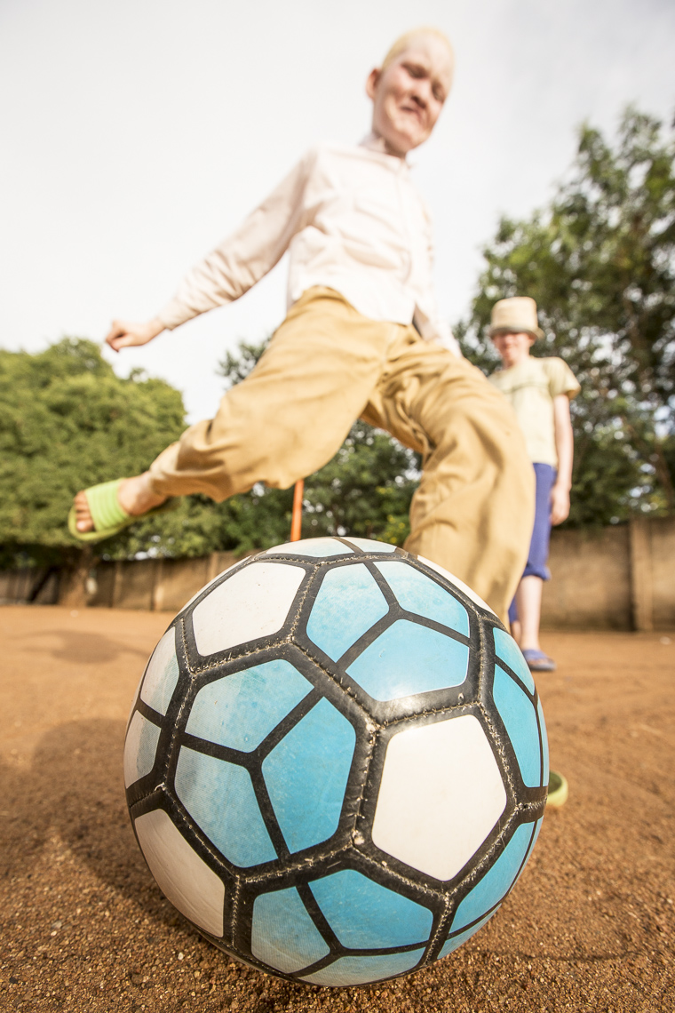 Closeup of a soccer ball being kicked by an albino boy in a schoolyard in East Africa