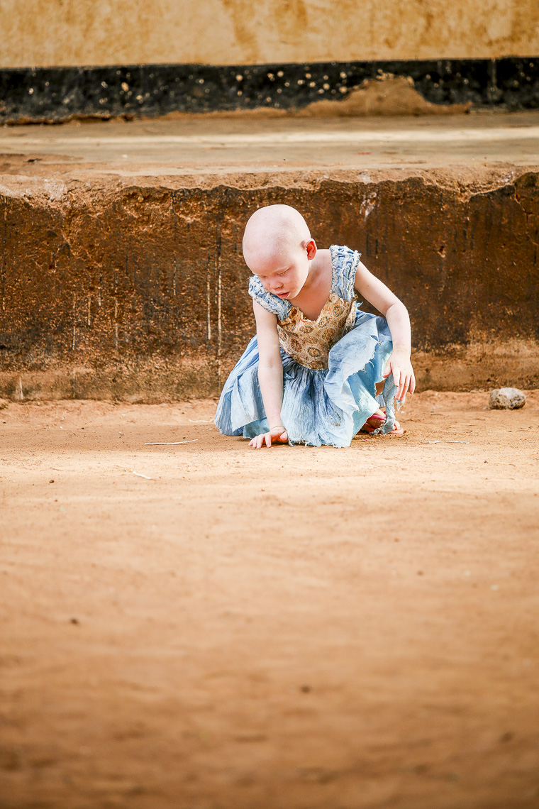 A small albino girl plays inside a facilty for childern in East Africa