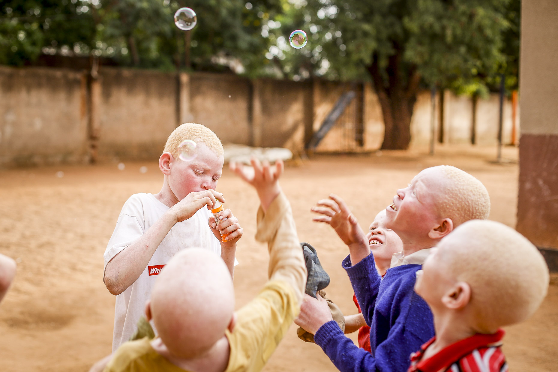 A group of albino boys delight in chasing bubbles in the coutyard of an East African orphanage