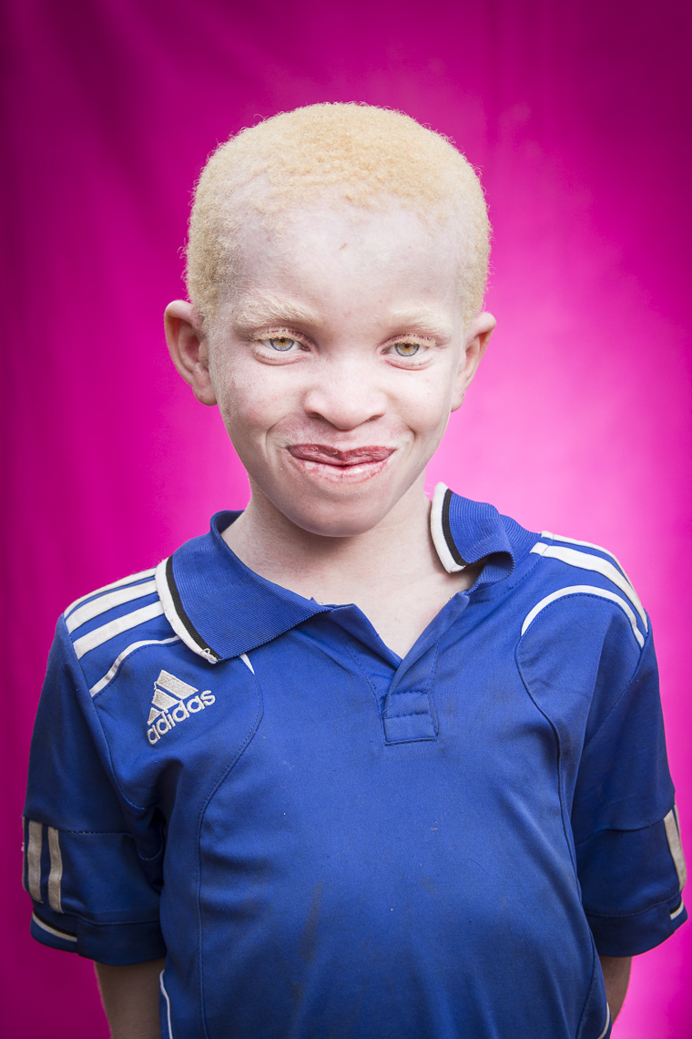 A proud young Albino boy beasm for the camera during a portrait session
