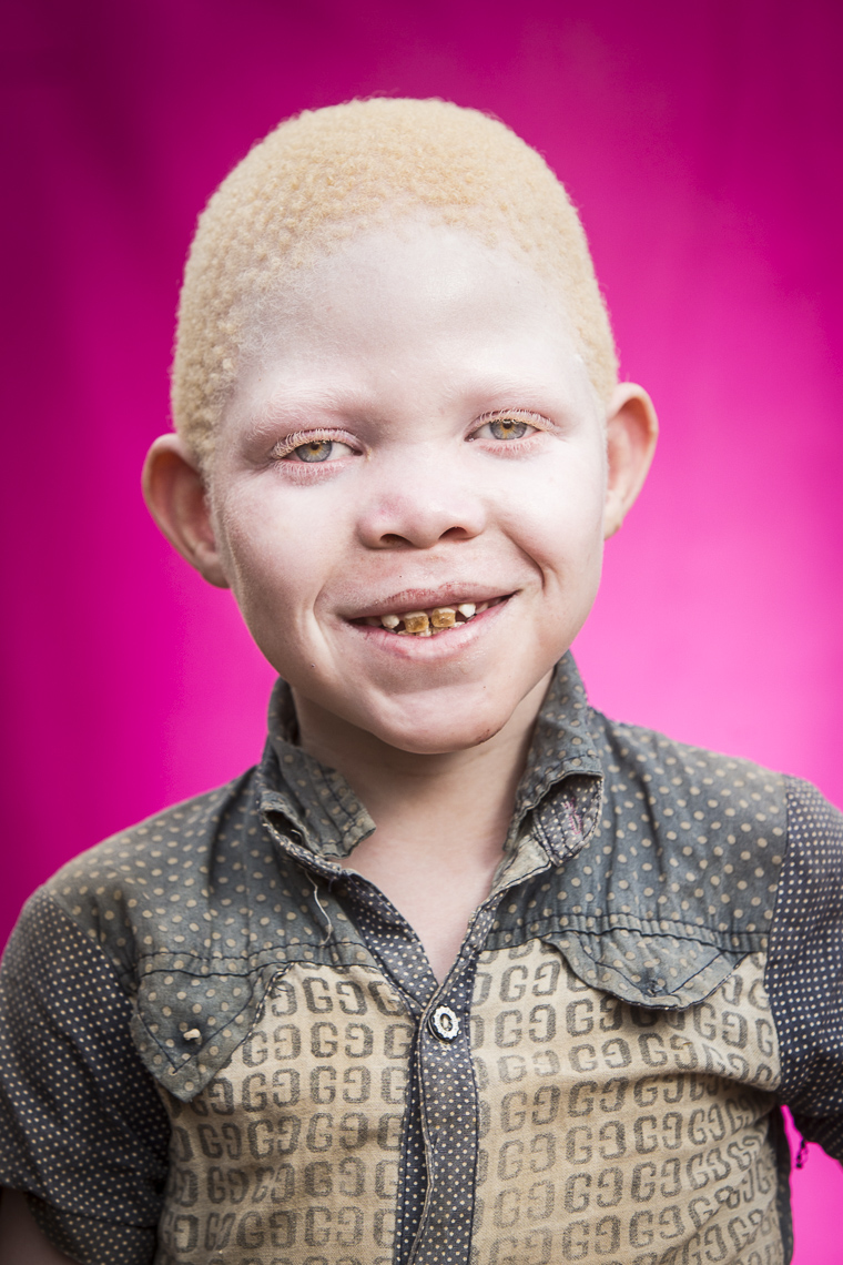 A series of portriats of albino children set on a pink background in East Africa