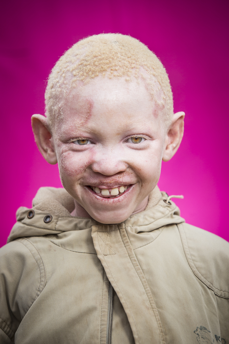 A young Albino boy laughs as he has his portrait taken at an orphanage in Tanzania