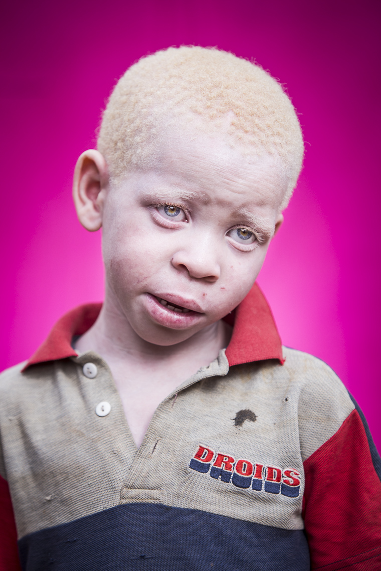 A portrait of a shy young albino boy against a pink backdrop