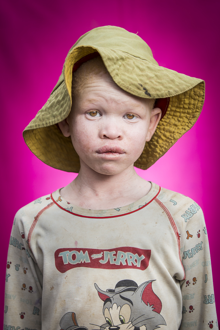 A series of portriats of children living with Albinism in East Africa
