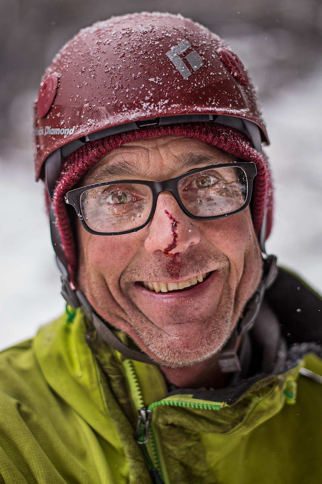 A closeup portrait of an ice climber coated with fresh snow and with a bloddy nose in New York